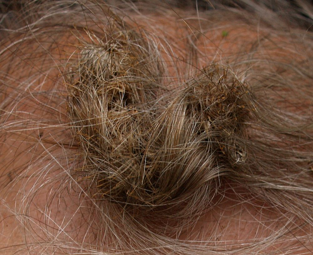 "Not a good idea to get ""burrs"" in your hair!"